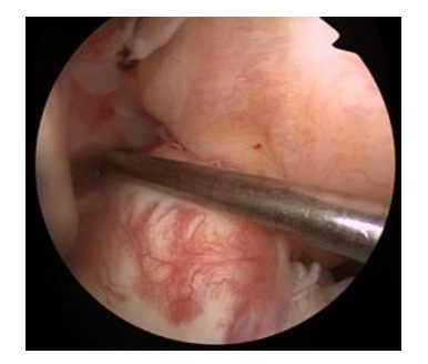 acl rupture pic