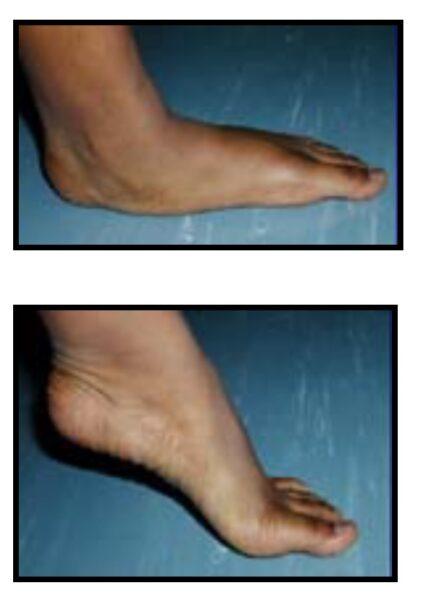 fff clinical photo